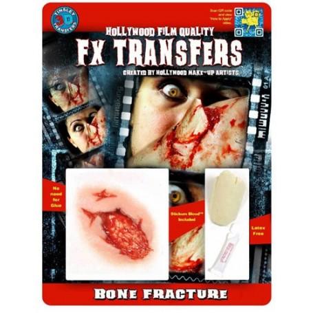 Bone Fracture 3D FX Transfer - Medium